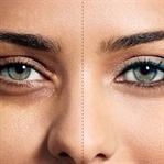 Göz altı morlukları ve doğal çözümler