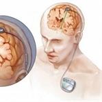 Neurohacking nedir ?