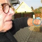Apple Watch, Yaşlı Adamın Bileğini Yaktı !