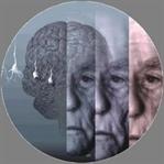 Alzheimer Belirtileri!