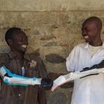 Akıllı Protezler Hayatları Daha İyi Yapıyor