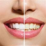 Diş Beyazlatmanın 6 Yolu