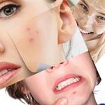 Akne ve Sivilce Tedavisi