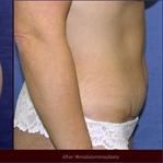 Karın Germe Ameliyatı Nedir? Nasıl Uygulanır?