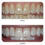 Diş Beyazlatma Yolları ( Resimli )