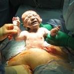 Sezeryan Mı Normal Doğum Mu Kararı Nasıl Verilir?