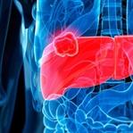 Karaciğer Büyümesi Neden Olur, Tedavisi Nedir?