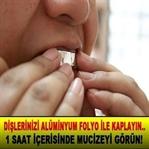 Alüminyum Folyo ile Diş Beyazlatma