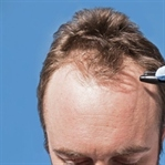 Saç Ekimi Hakkında Bilmeniz Gerekenler