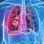 Akciğer Kanseri Tedavisi Belirtileri