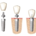 Diş İmplant Tedavim