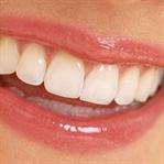 Güzel Bir Gülüş için Hangi Estetik Uygulama?