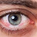 Gözdeki Alerjiyi Gözden Kaçırmayın!