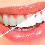Zirkonyum Diş Kaplaması Nasıl Yapılır ?