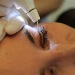 Augenlidstraffung mittels PlexR - Erfahrungsberich