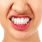 Diş Gıcırdatma(Bruksizm) Nedir?