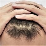 Kök hücre saçlarınıza iyi geliyor