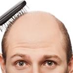 Aşırı Saç Dökülmesi Nedenleri ve Çözüm Önerileri