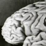 Zeki İnsanların Beyni Diğerlerinden Farklı Mı?