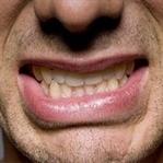 Botox yöntemi ile diş gıcırtamasına son