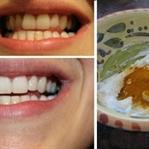 Günde Zerdale Çayı İle Beyaz Dişlere Kavuşun