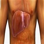 Karaciğer Yağlanması Nedir? Belirtileri