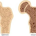 Kemik Erimesi (Osteoporoz) Durdurmanın Yolları