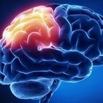 Beyin Kanseri ve Belirtileri