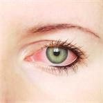 Depresyon İlaçları ve Menopoz Göz Kuruluğuna Sebep
