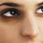 Göz Altı Morluklarının Sebepleri Nelerdir?