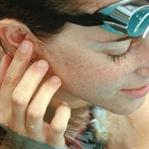 'Yüzücü Kulağı' Hastalığına Dikkat!