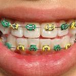 Çocuğa Diş Teli Taktırmak Şart mı?