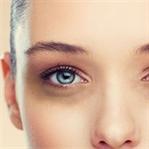 Mor Göz altları Nasıl Kapatılır?