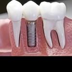 İmplant Diş Tedavisi Yaptıracaklara Önerilerim