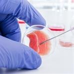Kök Hücre Tedavisi Güvenilir Midir?