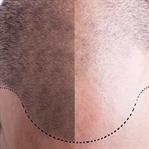 Önce tedavi sonra saç ekimi