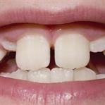 Süt dişleri nasılsa düşer demeyin!