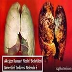 Akciğer Kanseri Nedir? Belirtileri & Tedavisi