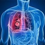 Akciğer Kanserinin Başlıca Sebepleri Nelerdir?