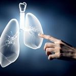 Akciğer Kanserinde Tarama Yöntemleri