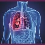 Akciğer Kanseri Belirtileri