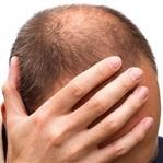Bölgesel Saç Ekimi Nedir, Nasıl Yapılır?