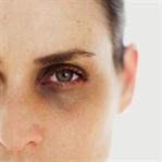 Göz Altı Morlukları Nasıl Önlenir?