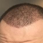 Saç Ekimi Sonrası Dökülme Sorunu ve Tedavisi
