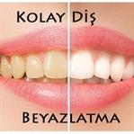 Pratik Bilgi Önerisi: Kolay Diş Beyazlatma