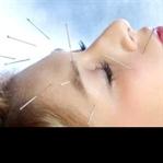Akupunktur Tedavisi Nedir ? Kimlere Uygulanır ?