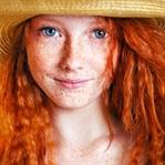 Kızıl Saçlı İnsanların Genetik Süpergüçleri Var