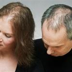Saç Dökülmesinin 5 Nedeni