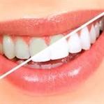 Diş Beyazlatma Nasıl Yapılır?