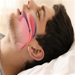 Uyku Apnesi Nedir? Uyku Apnesinin Sebepleri